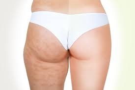 cellulite graisse