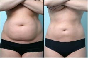 liposuccion par ultrason