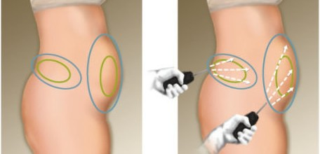 liposuccion-laser-tunisie