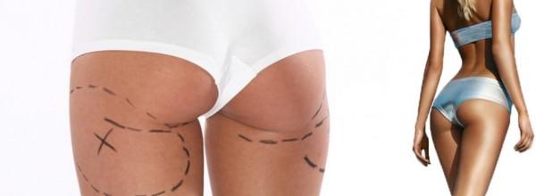 liposuccion-fesses