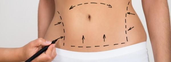 Liposuccion permanente