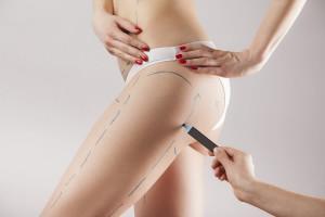Les différents types de liposuccion