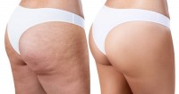 liposuccion-cellulite-adipeuse