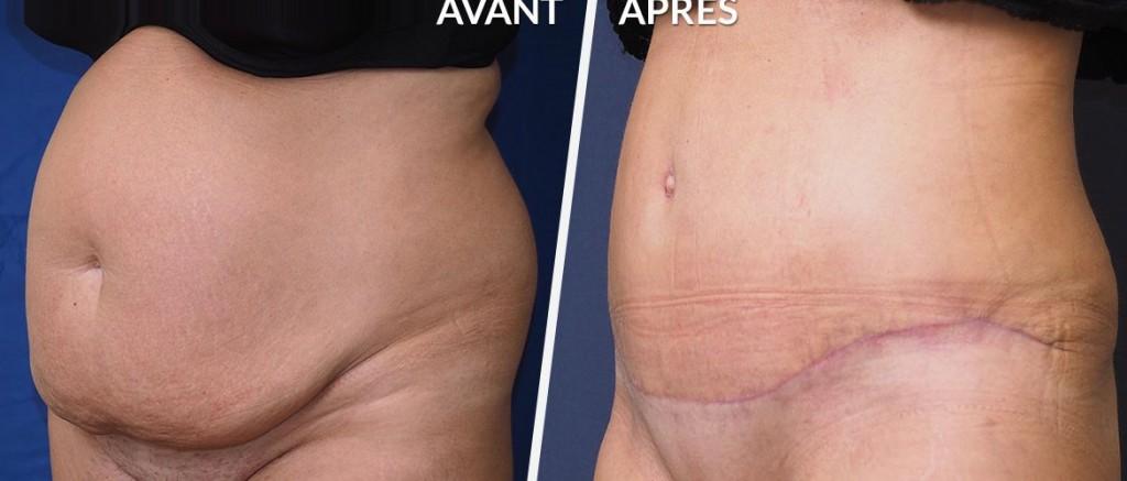 différence entre une plastie abdominale et une liposuccion